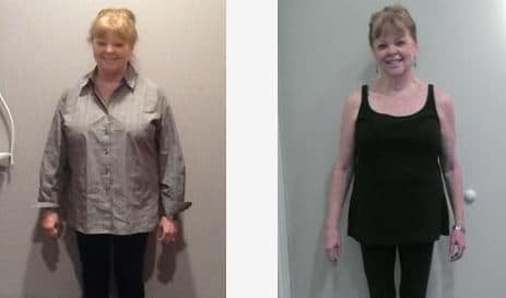 Weight Loss Patient Testimonial Colleen